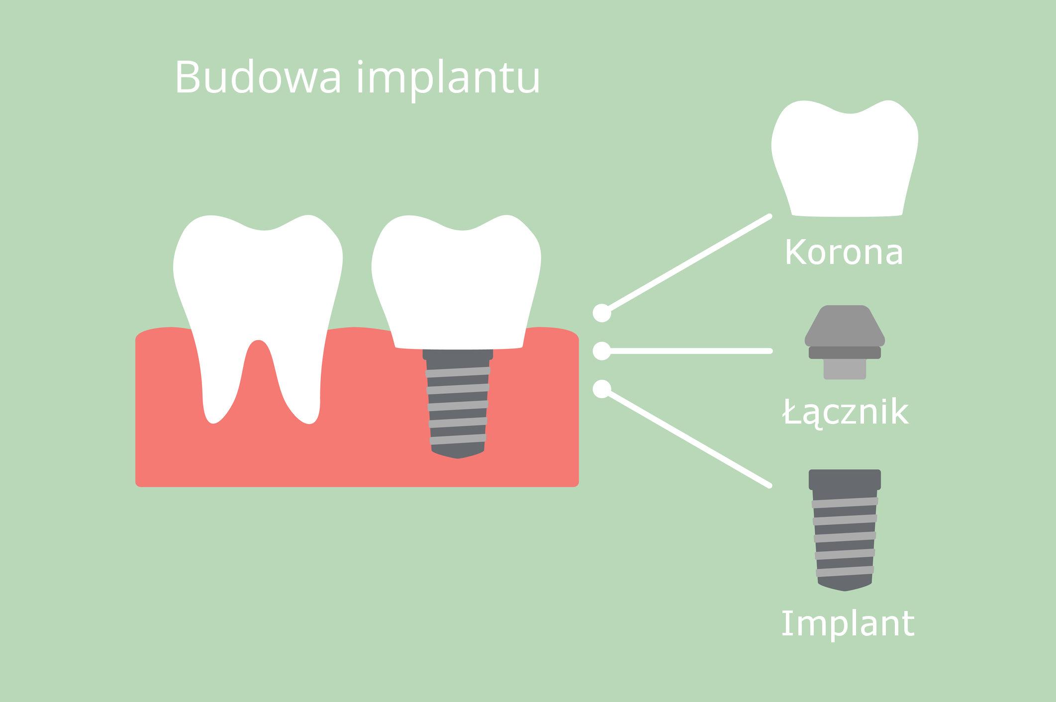Budowa implantu zębowego